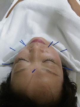 鍼灸治療②美容鍼(お顔の鍼治療)