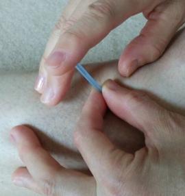 鍼治療⑧トリガーポイントの鍼治療
