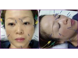 美容鍼の効果