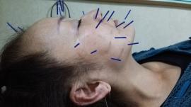 美容鍼のうれしい報告②